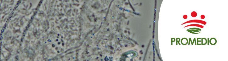 Bacterias Glotonas Las Protagonistas Del Tratamiento De Las Aguas Residuales